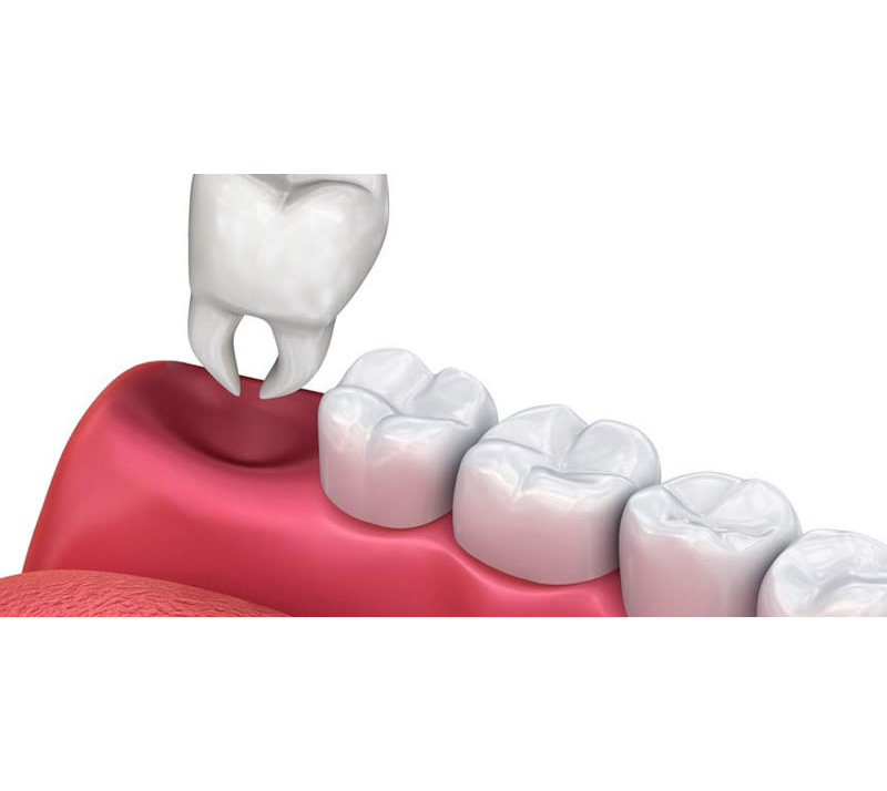 teeth extractions near you