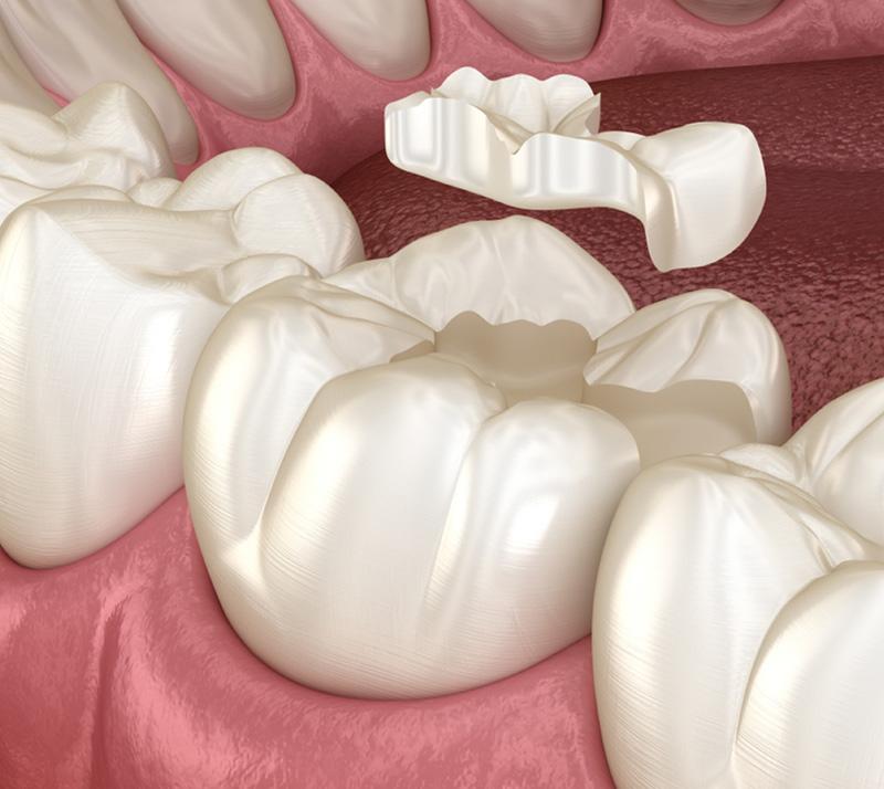 dental inlays and onlays near you