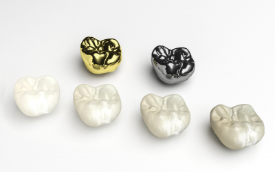 What Are Dental Crowns and How Do They Help Your Smile?